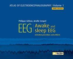 EEG : Awake and Sleep, Activation Procedures and Artifacts